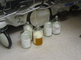 Draining 22+ liters of fluid
